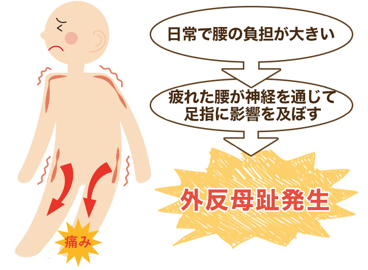 腰の疲れが原因の外反母趾・強剛母趾・内反小趾