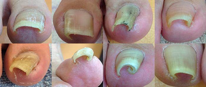 どの様な状態の爪でも対応可能