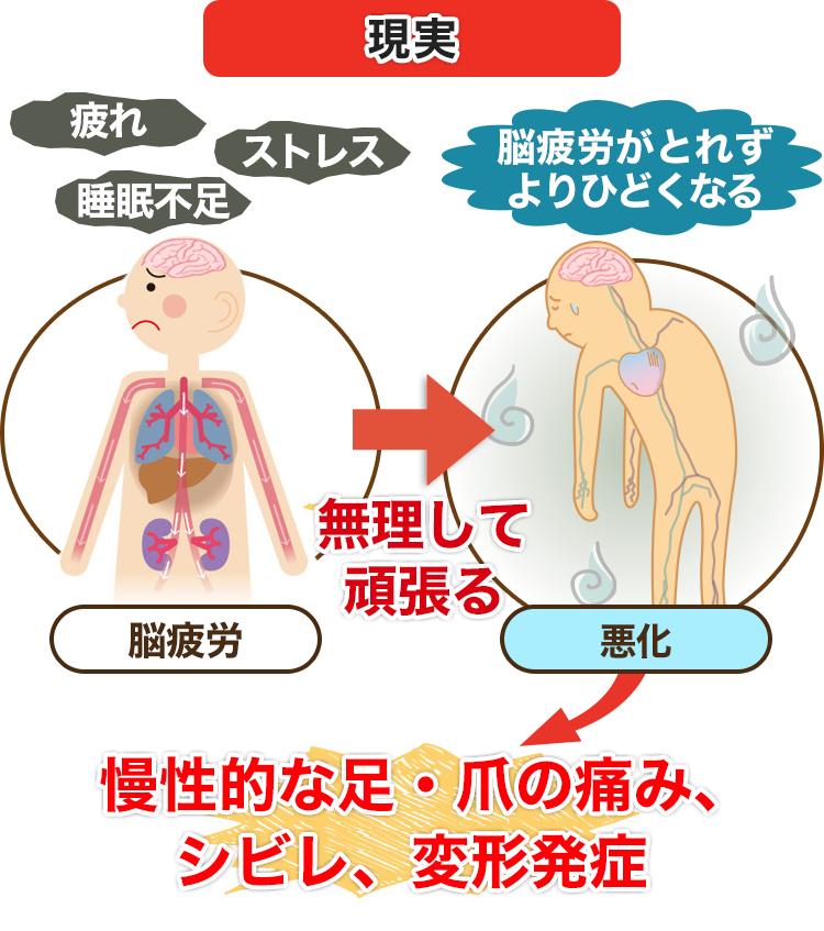 慢性的な足・爪の痛み、シビレ、変形発症