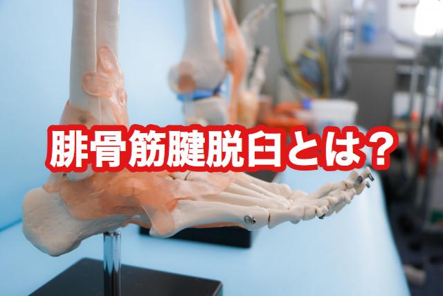 腓骨筋腱脱臼とは?腓骨筋腱脱臼といえば新宿足改善センターへ!!