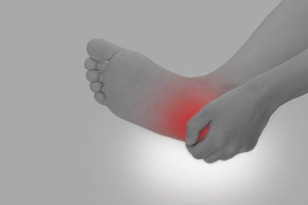 足底筋膜炎の特徴と骨盤王国のアプローチについて