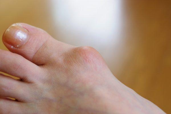 外反母趾と間違えやすい【強剛母指】とは?