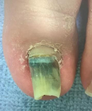 重複爪(二段爪)について原因と対処法