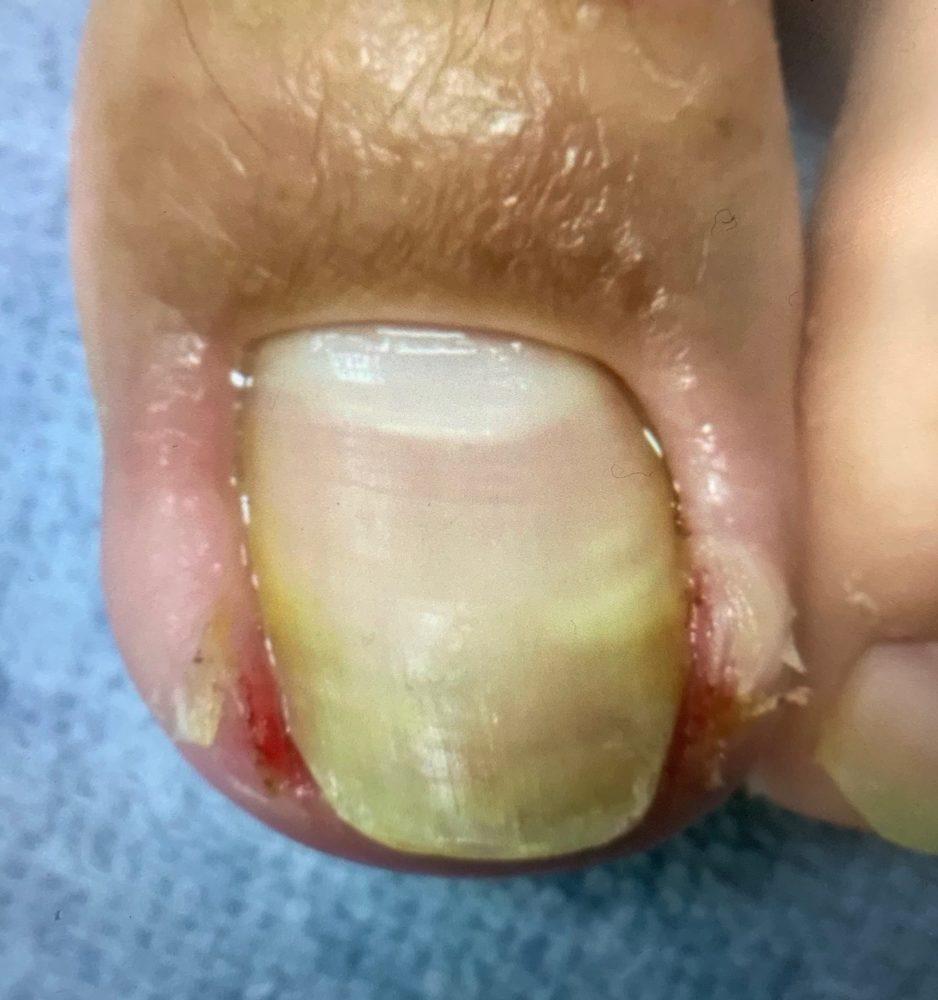 巻き爪よりタチが悪い!? 陥入爪の原因と対策法をご紹介