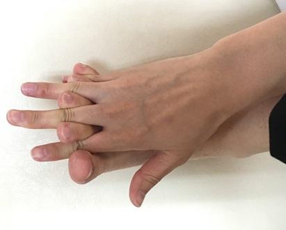 巻き爪の方必見。自宅で簡単にできるグーパー体操‼
