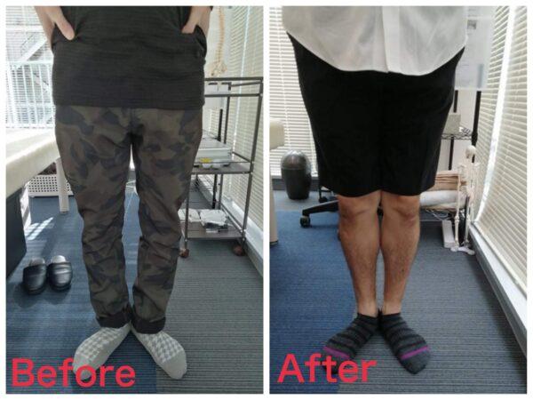 毎回変化のあるO脚矯正に驚きました